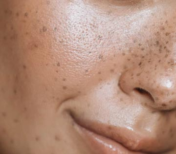 treat melasma