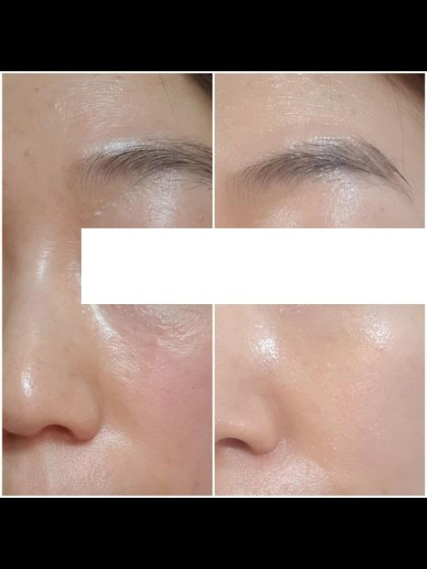 Incellderm customer review and photo 008