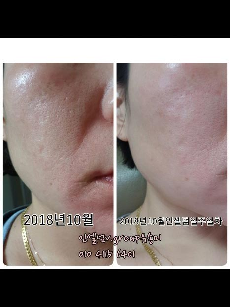 Incellderm customer review and photo 010
