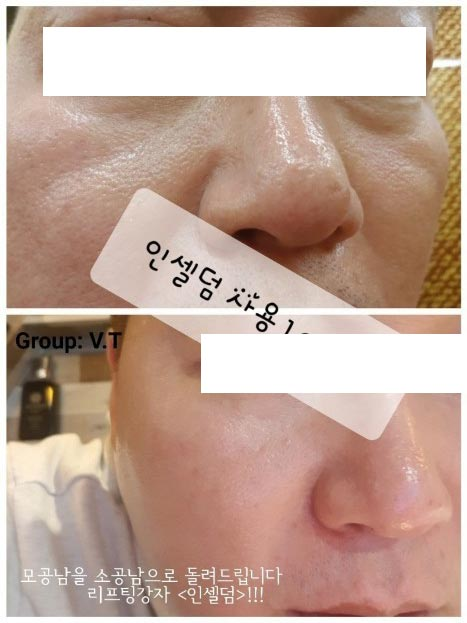 Incellderm customer review and photo 011