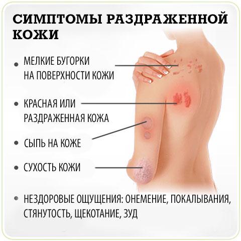 симптомы раздраженной кожи
